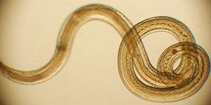Очищение от паразитов